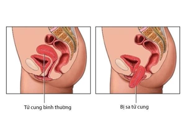 Hình ảnh tử cung bình thường và tử cung bị sa xuống